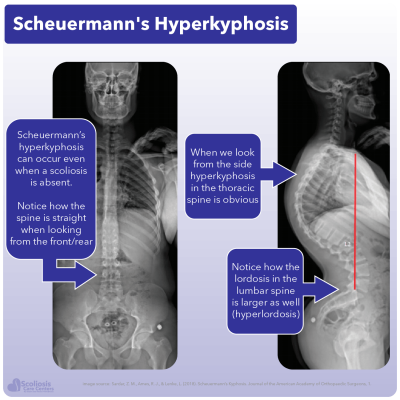 X-ray showing patient with Scheuermann's hyperkyphosis