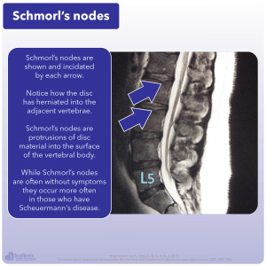 Example of Schmorl's nodes with disc material herniating into adjacent vertebrae