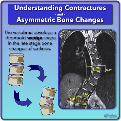 Asymmetric bone changes and wedged vertebrae in scoliosis