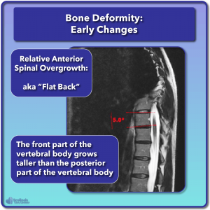 Scoliosis early bone deformity changes