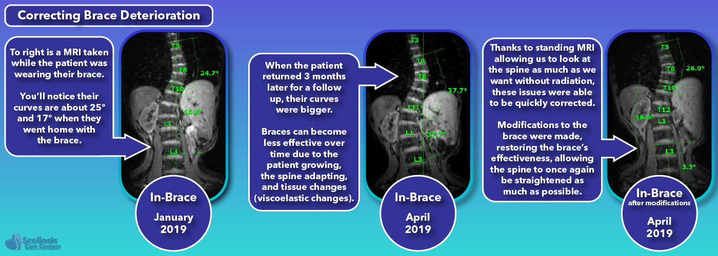 Scoliosis braces can deteriorate in performance over time and require modification to correct them