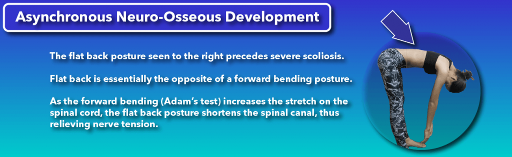 A flat back helps relieve underlying nerve tension which precedes scoliosis