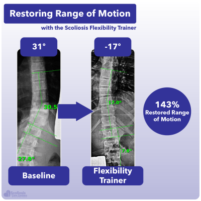 X-ray showing 143% increase in range of motion in the spine using the Scoliosis Flexibility Trainer