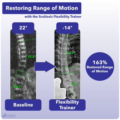 X-ray showing 163% increase in range of motion in the spine using the Scoliosis Flexibility Trainer