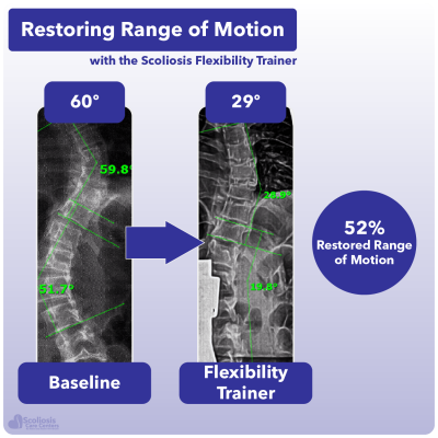 X-ray showing 52% increase in range of motion in the spine using the Scoliosis Flexibility Trainer