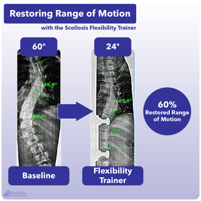 X-ray showing 60% increase in range of motion in the spine using the Scoliosis Flexibility Trainer