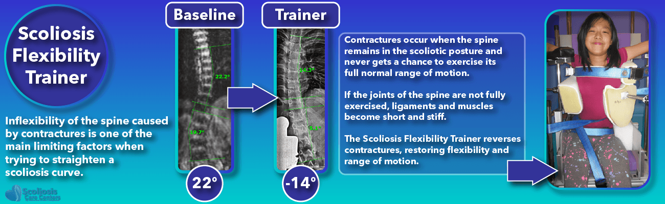 Patient in the Scoliosis Flexibility Trainer restoring range of motion to the spine