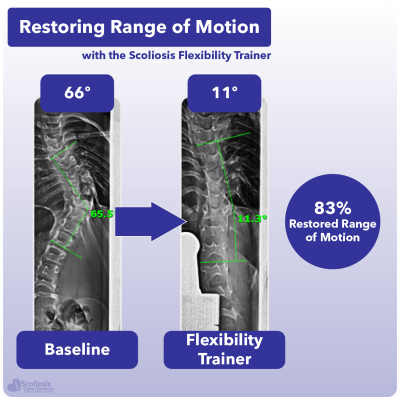 X-ray showing 83% increase in range of motion in the spine using the Scoliosis Flexibility Trainer