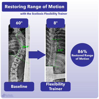 X-ray showing 86% increase in range of motion in the spine using the Scoliosis Flexibility Trainer