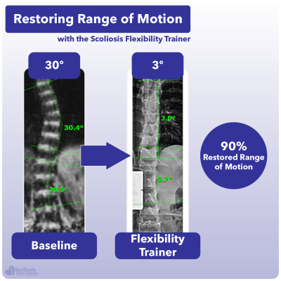 X-ray showing 90% increase in range of motion in the spine using the Scoliosis Flexibility Trainer