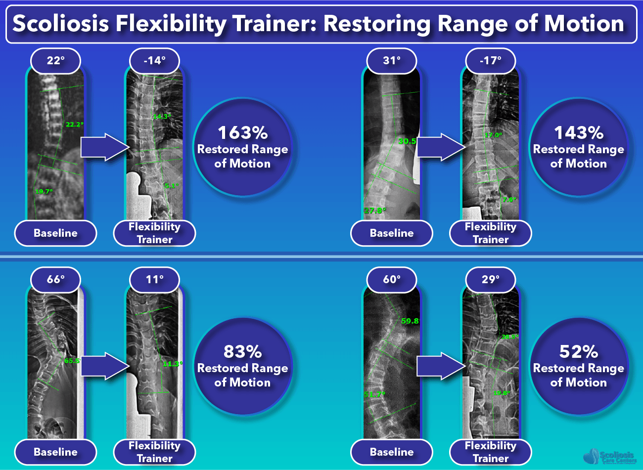 Additional Scoliosis Flexibility Trainer Range of Motion Results
