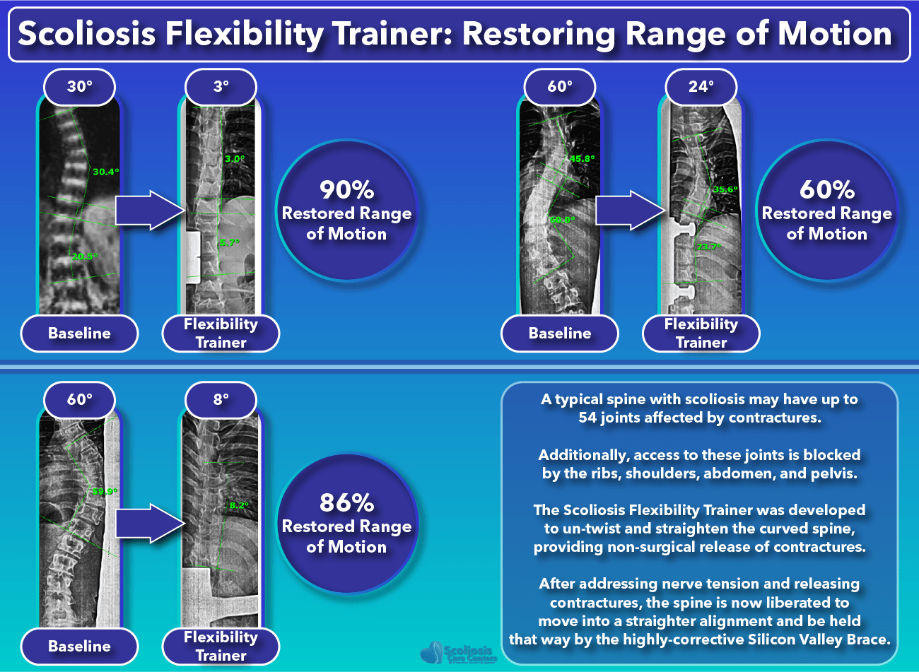 Scoliosis Flexibility Trainer Restored Range of Motion Results