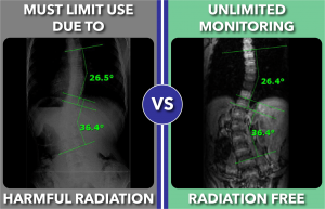 Radiation free scoliosis monitoring with standing MRI