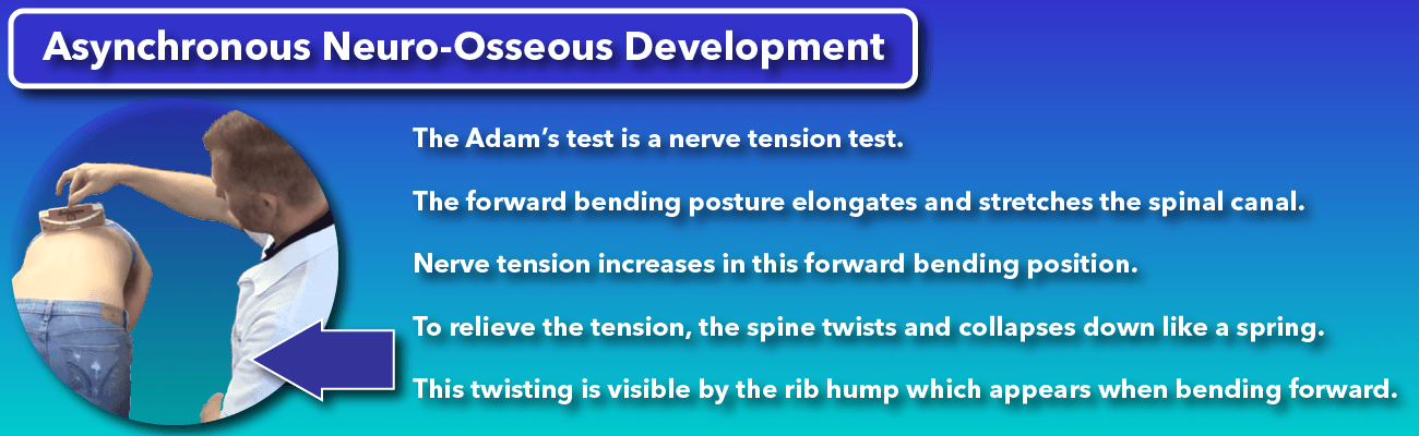 The Adam's forward bending test for scoliosis assesses nerve tension