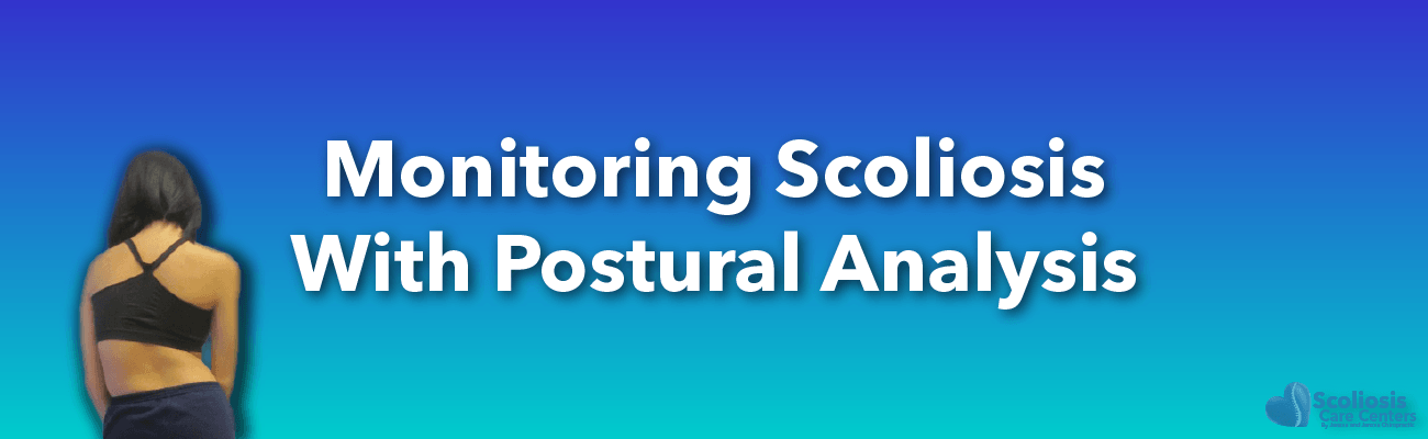 Postural analysis use to monitor scoliosis