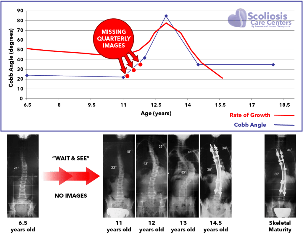 Graph and images of scoliosis progression and rate of growth during puberty