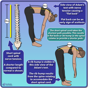Illustrated example of a short spinal cord and nerve tension resulting in flat back or rib hump