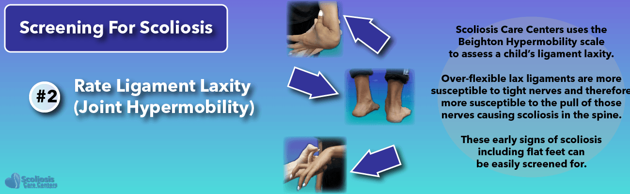 Screening for hypermobility and flat feet can aid in nerve tension and scoliosis detection