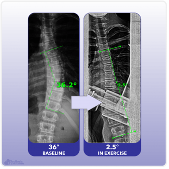 X-ray showing curve reduction during scoliosis specific exercise