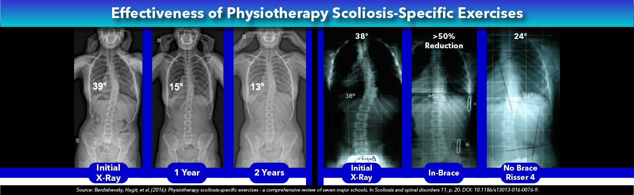Effectiveness of Physiotherapy Scoliosis-Specific Exercises
