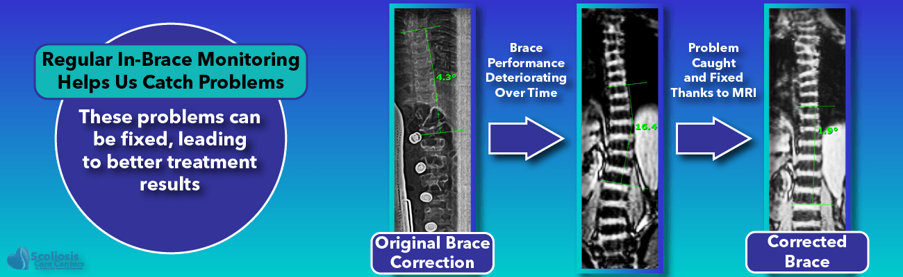 Regular in-brace scoliosis monitoring helps detect and correct problems