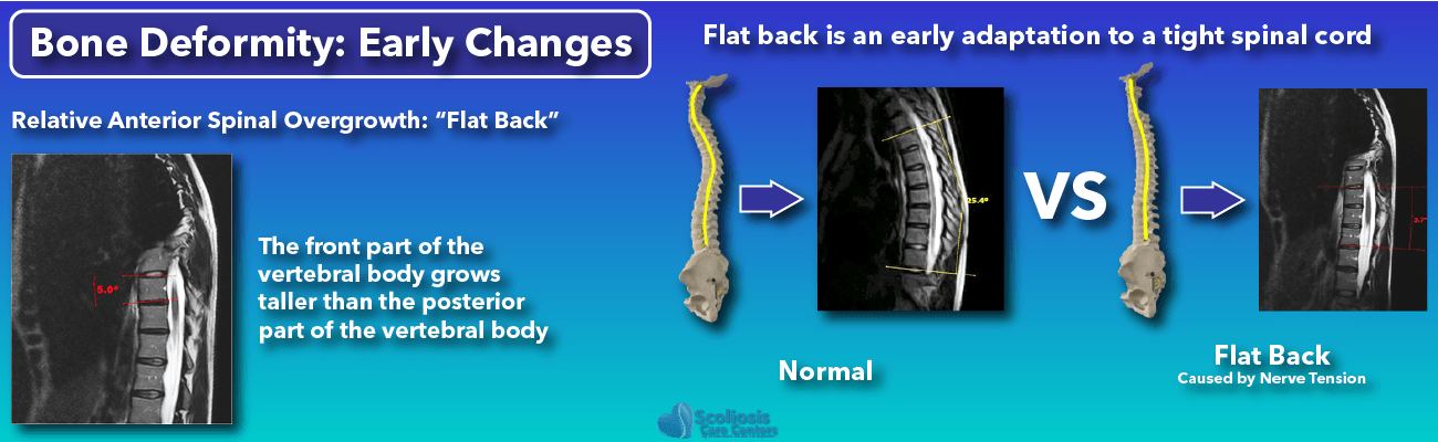 Scoliosis Early Stage Changes Bone Deformity