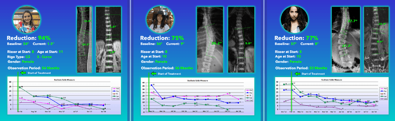 Highlighted Scoliosis Treatment Results