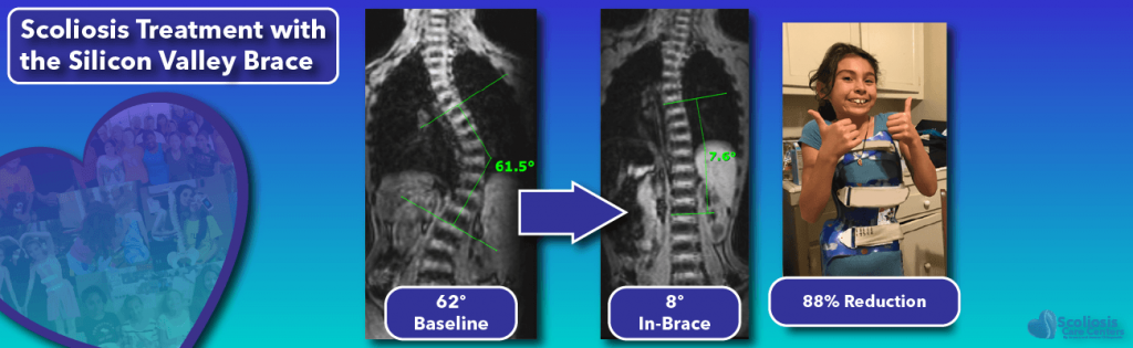 In-brace scoliosis correction with the Silicon Valley Brace