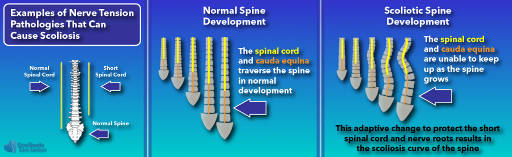 Examples of nerve tension pathologies that can cause scoliosis
