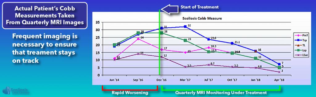 Quarterly MRI Scoliosis Imaging to monitor scoliosis treatment