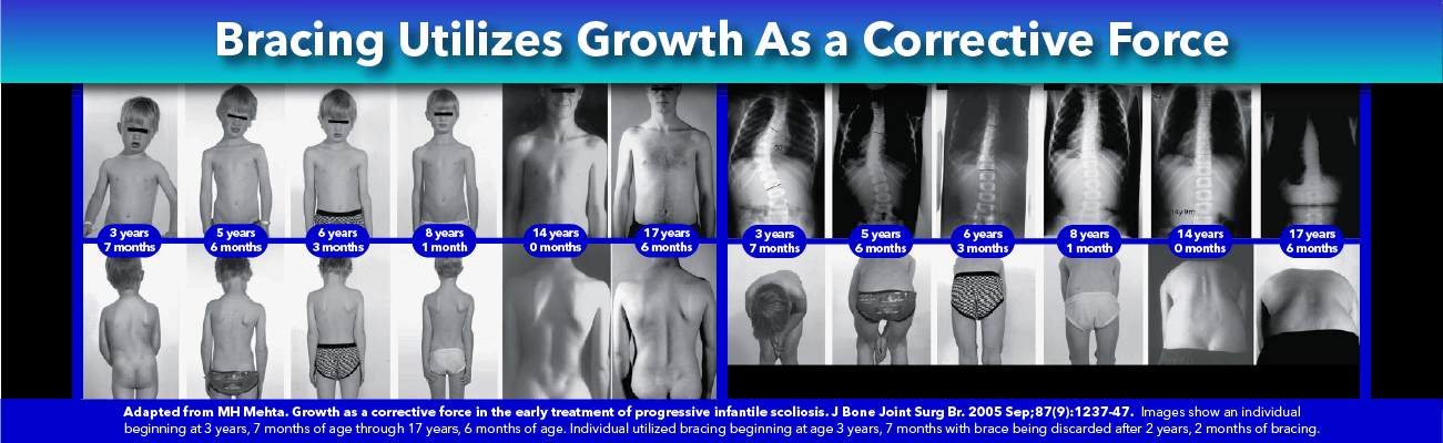 Non-Surgical Scoliosis Improvement: Utilize growth as a corrective force (Mehta)