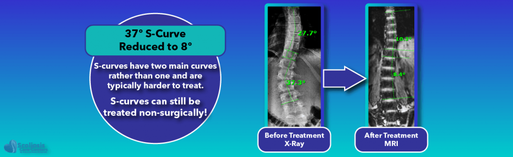Non-surgical scoliosis treatments can be effective even for S-curves