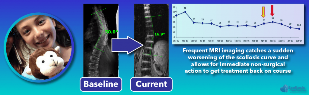 Frequent imaging provides better scoliosis treatment success