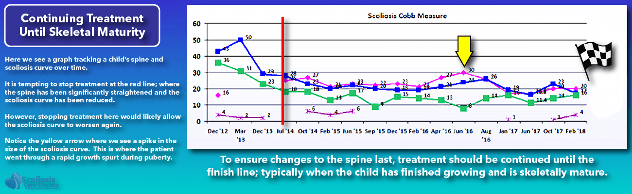Non-Surgical Scoliosis Improvement: Treatment Timeline and Skeletal Maturity