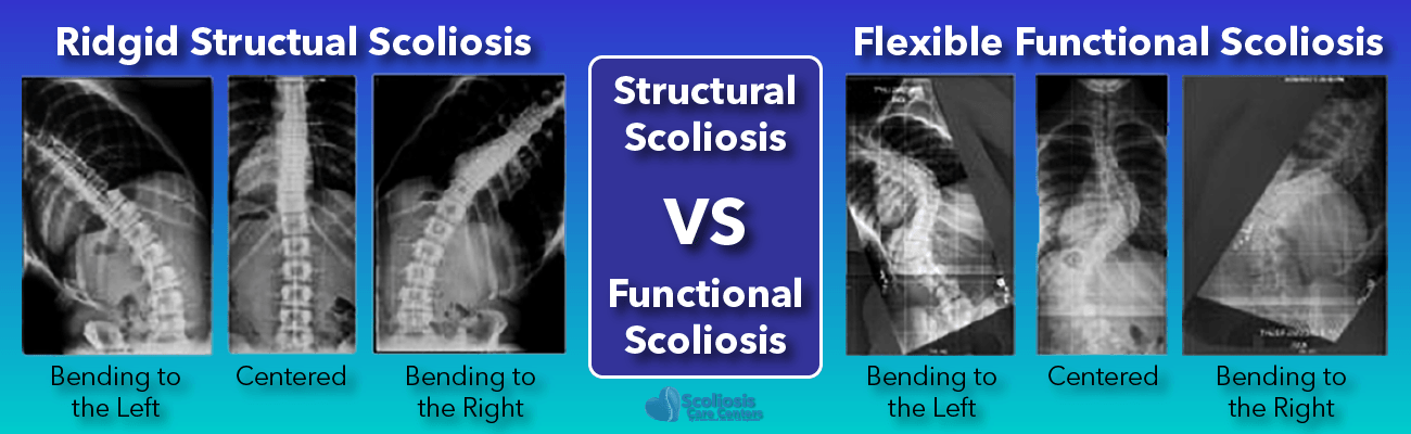 What is scoliosis - Structural scoliosis versus functional scoliosis