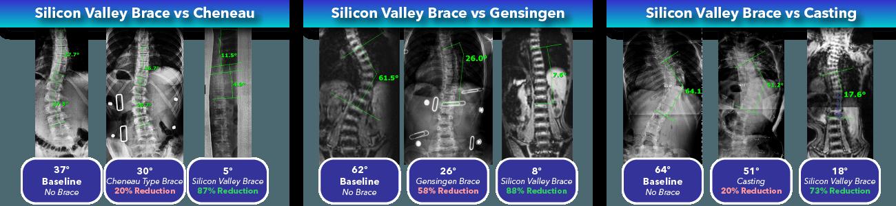Silicon Valley Scoliosis Brace Comparison