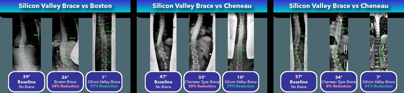 Silicon Valley Scoliosis Brace Comparison 2