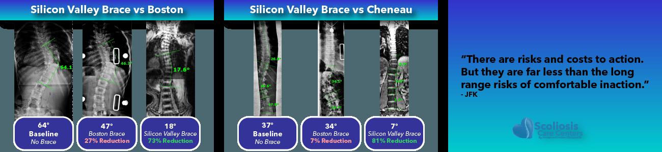 Silicon Valley Scoliosis Brace Comparison 3