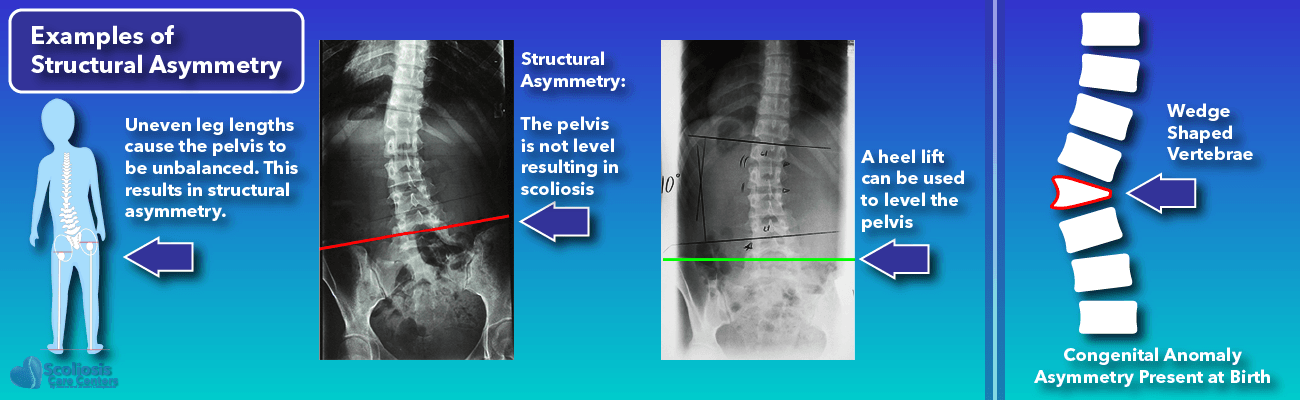 Scoliosis Defined - Examples of Structural Asymmetry