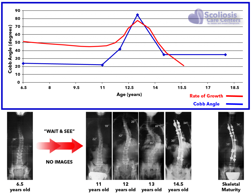 Scoliosis Progression and rate of Growth