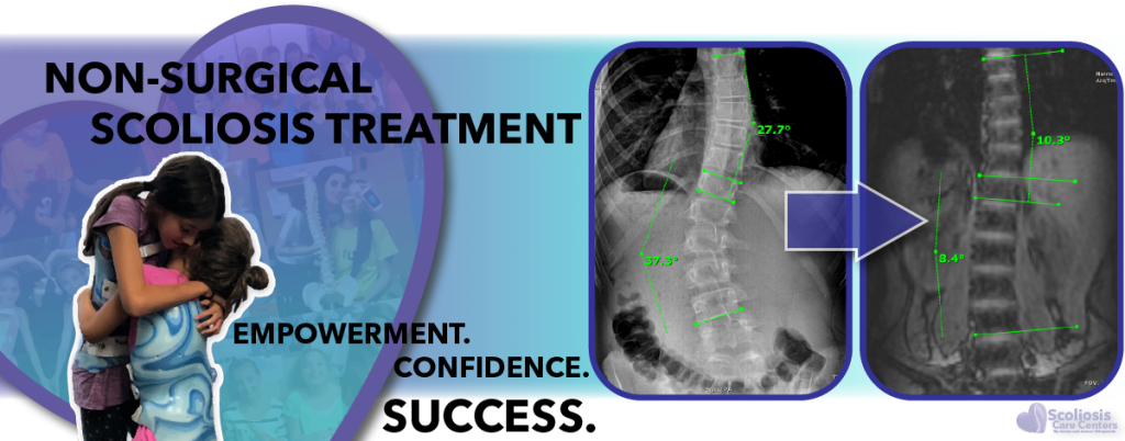 Non-Surgical Scoliosis Treatment with Scoliosis Care Centers