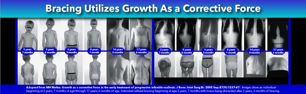 Scoliosis Bracing Utilizes Growth As Corrective Force