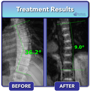 Scoliosis Care Centers Treatment Results banner