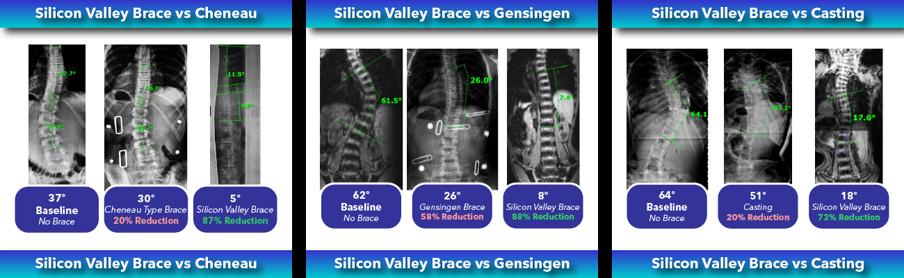 Immediate in-brace scoliosis correction comparison