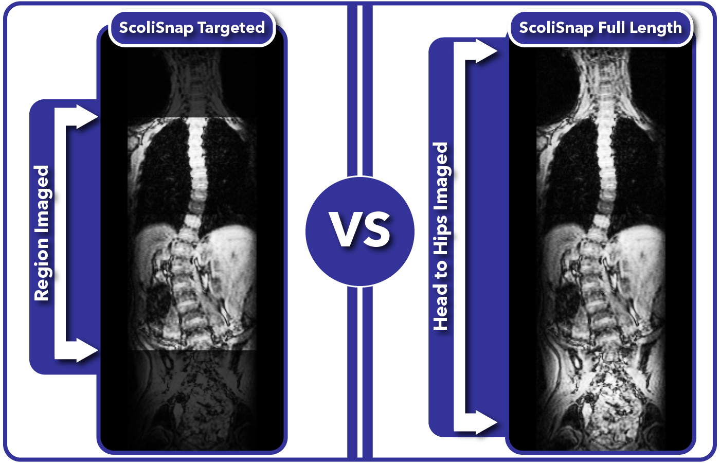 Comparison of targeted versus full length MRI monitoring of scoliosis