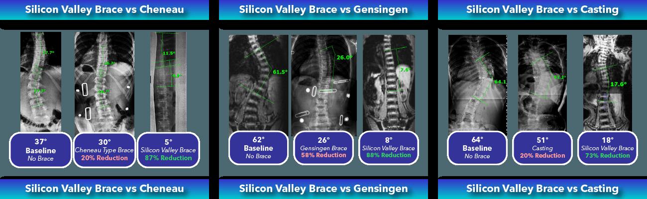 Immediate in-brace scoliosis correction comparison