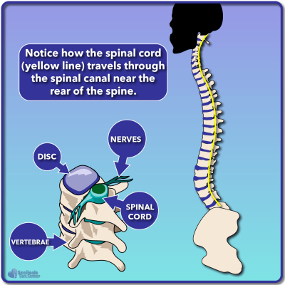 Cross section diagram of spinal cord and spinal canal