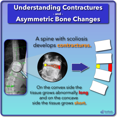 Example of contracture development in scoliosis