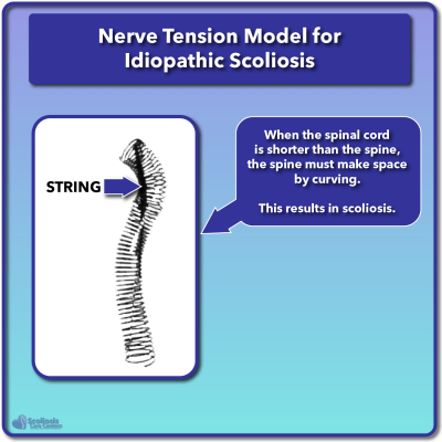 Roth spring model for scoliosis nerve tension