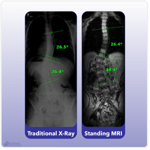 X-ray and MRI comparison showing accurate measurement of a curve in the spine